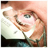 Cirugía de ojo